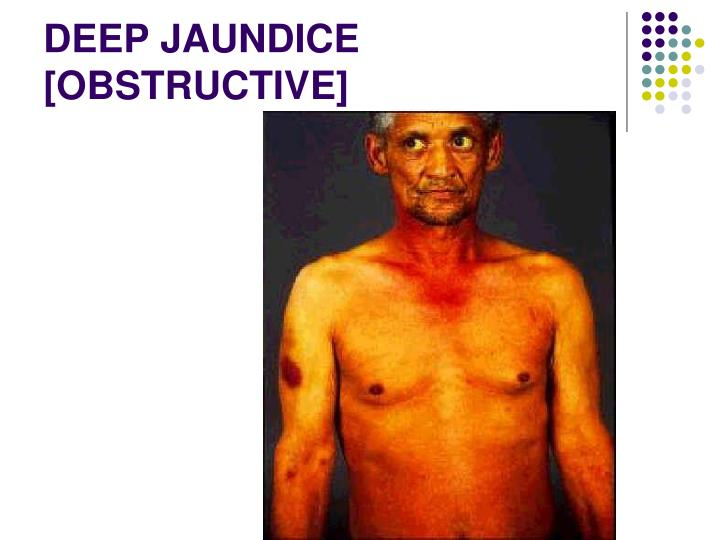 DEEP JAUNDICE [OBSTRUCTIVE]