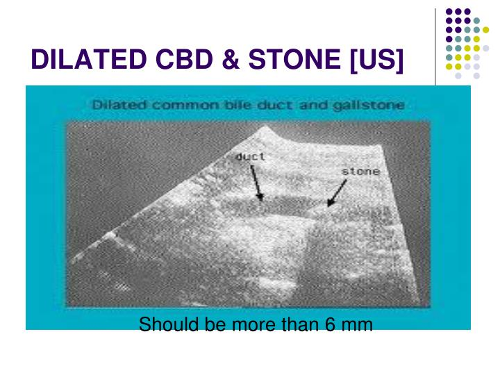 DILATED CBD & STONE [US]