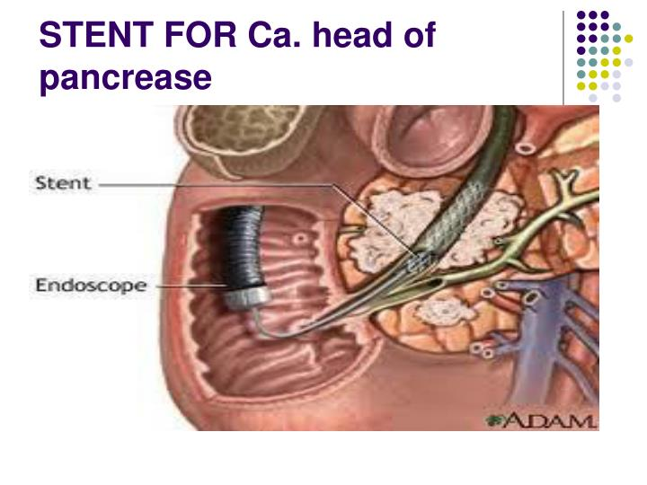 STENT FOR Ca. head of pancrease