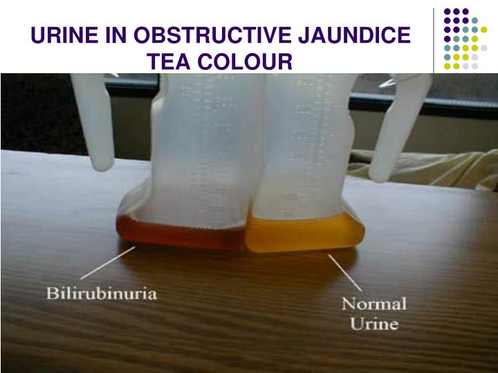 URINE IN OBSTRUCTIVE JAUNDICE