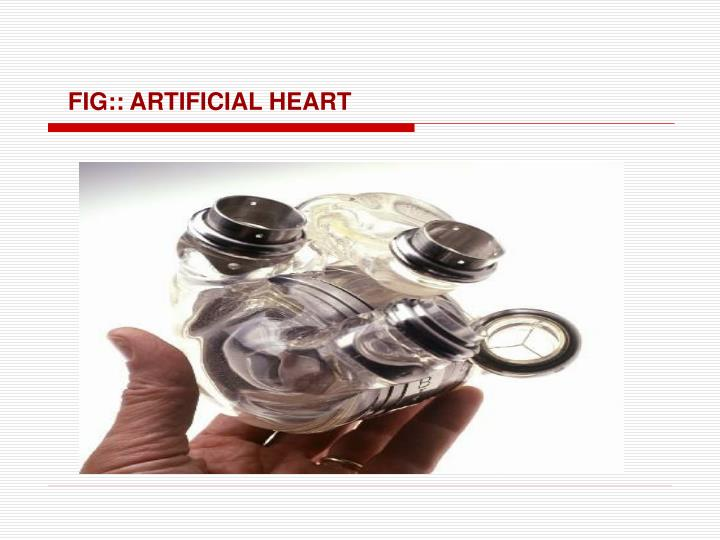 FIG:: ARTIFICIAL HEART