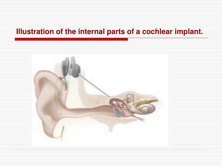Illustration of the internal parts of a cochlear implant.