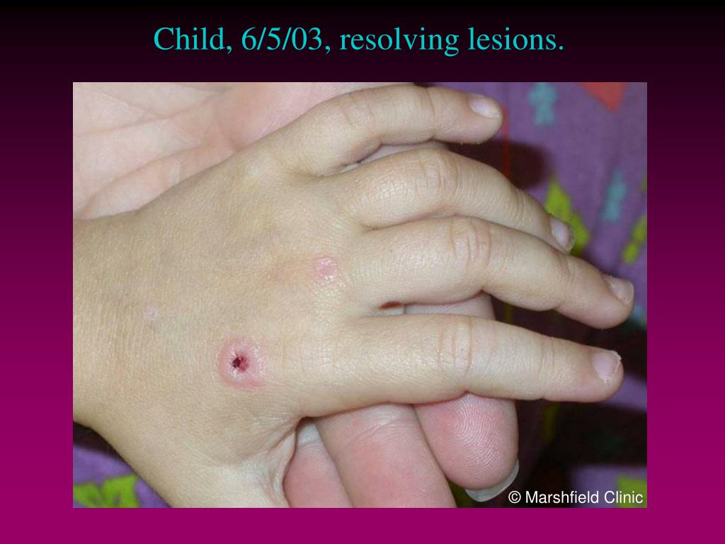 Child, 6/5/03, resolving lesions.