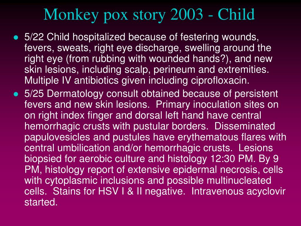 Monkey pox story 2003 - Child