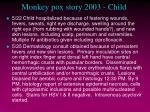 monkey pox story 2003 child15
