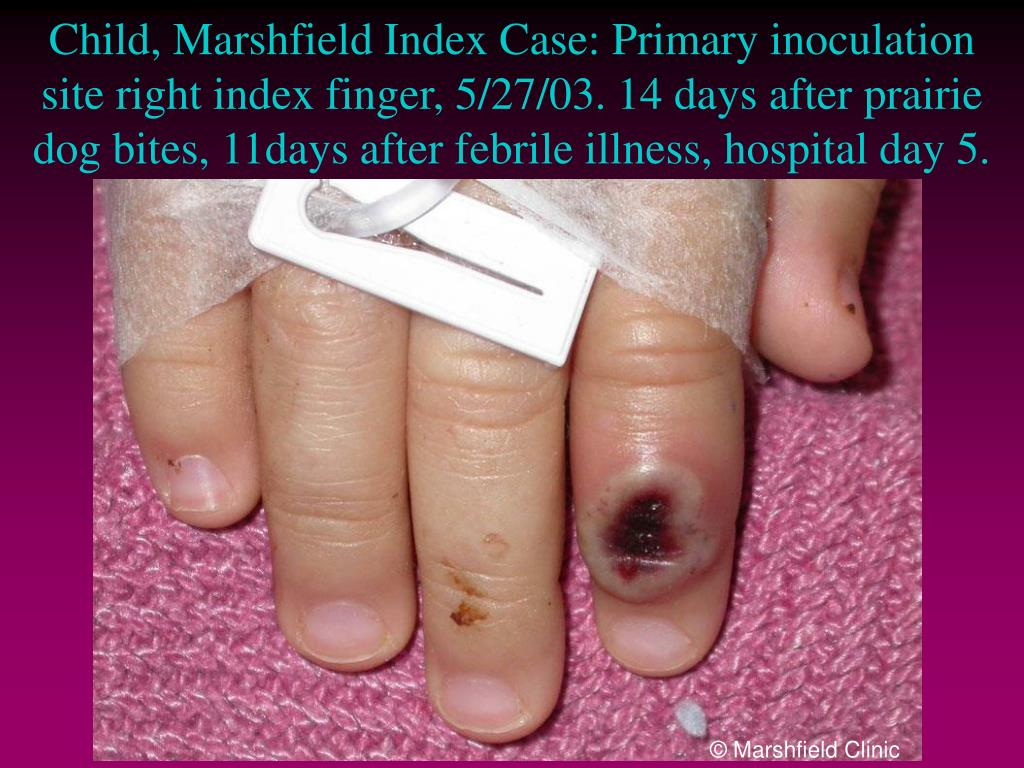 Child, Marshfield Index Case: Primary inoculation site right index finger, 5/27/03. 14 days after prairie dog bites, 11days after febrile illness, hospital day 5.