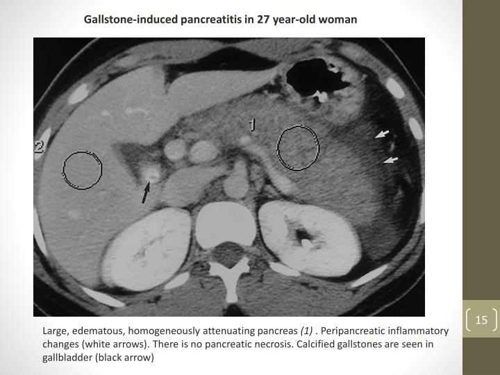 Gallstone-induced pancreatitis in 27 year-old woman