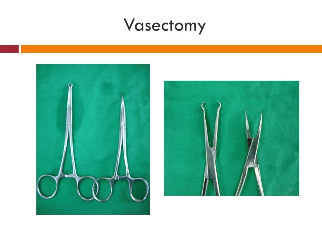 Vasectomy