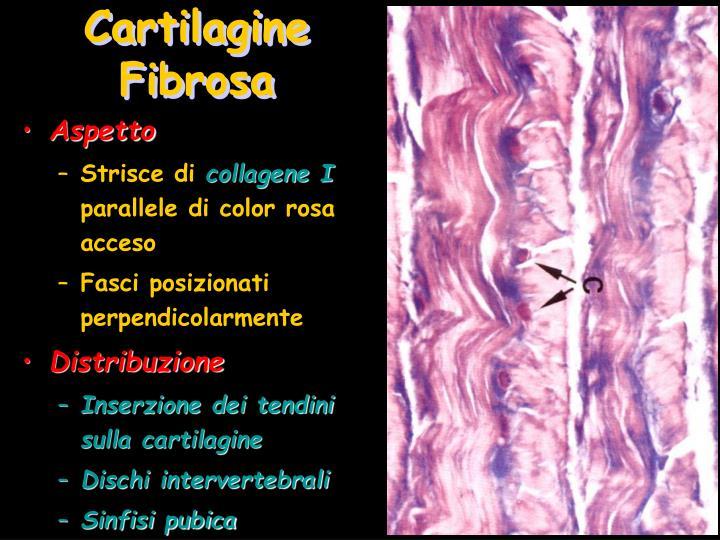 Cartilagine Fibrosa
