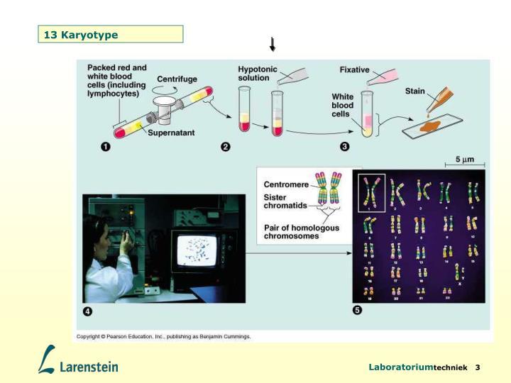 13 Karyotype