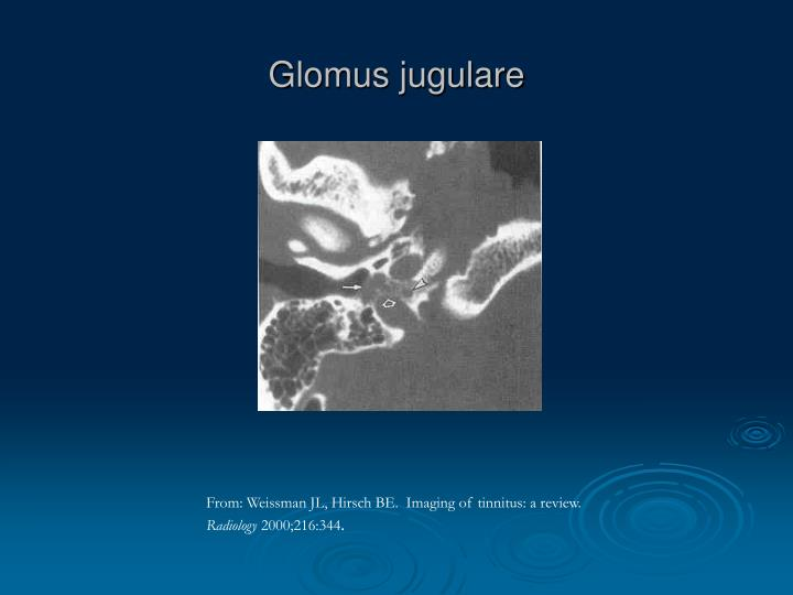 Glomus jugulare
