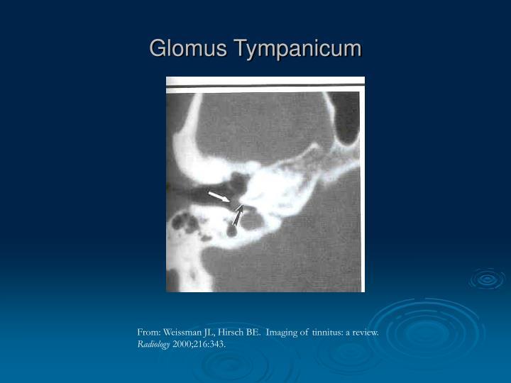 Glomus Tympanicum