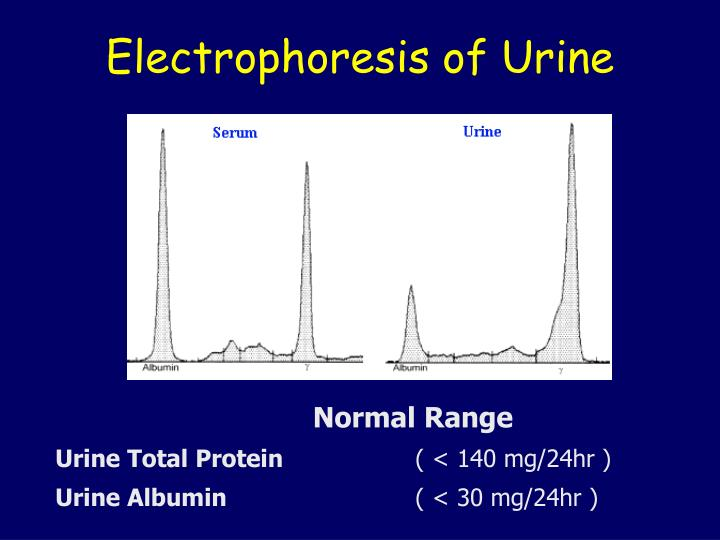 Electrophoresis of Urine