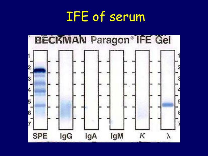 IFE of serum
