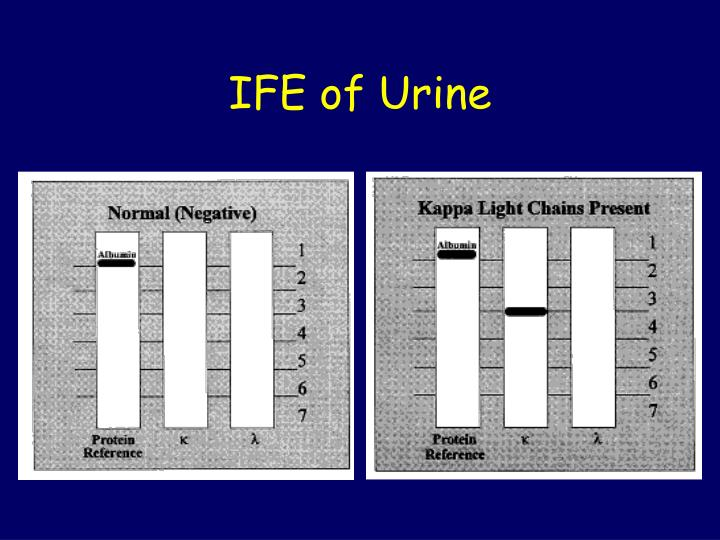 IFE of Urine