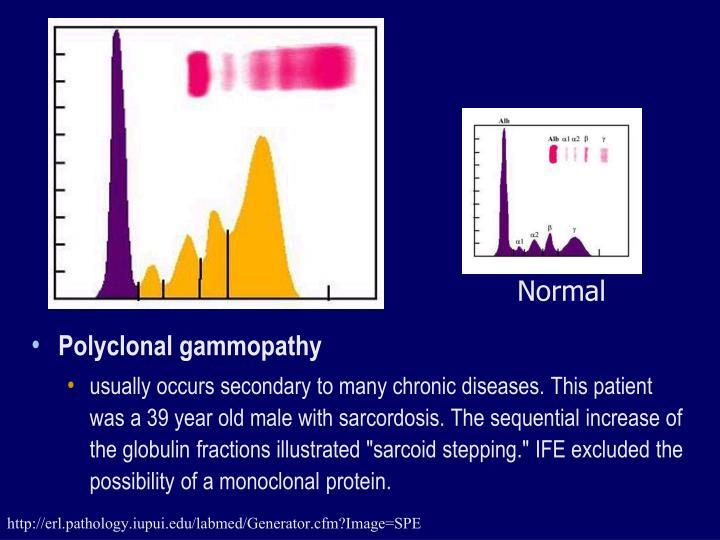 Polyclonal gammopathy
