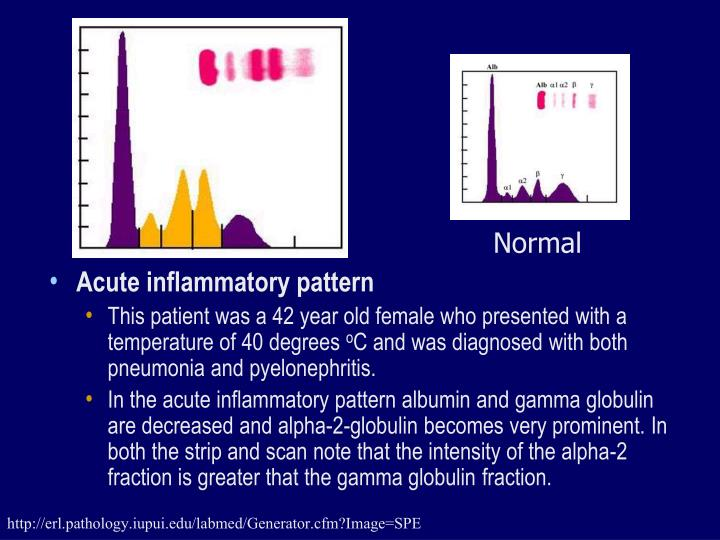 Acute inflammatory pattern