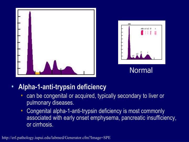 Alpha-1-anti-trypsin deficiency