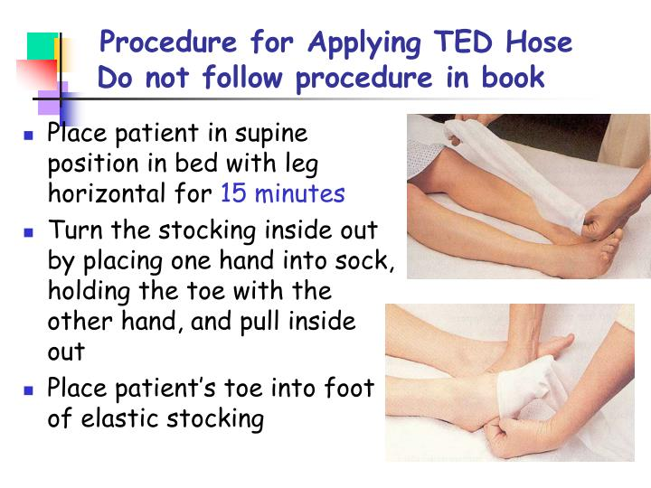 Procedure for Applying TED Hose