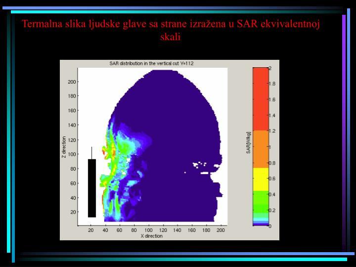 Termalna slika ljudske glave sa strane izražena u SAR ekvivalentnoj skali
