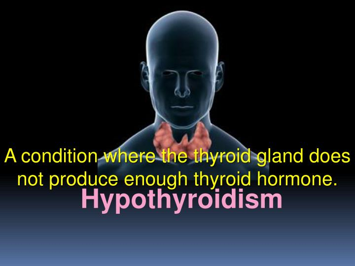 A condition where the thyroid gland does not produce enough thyroid hormone.