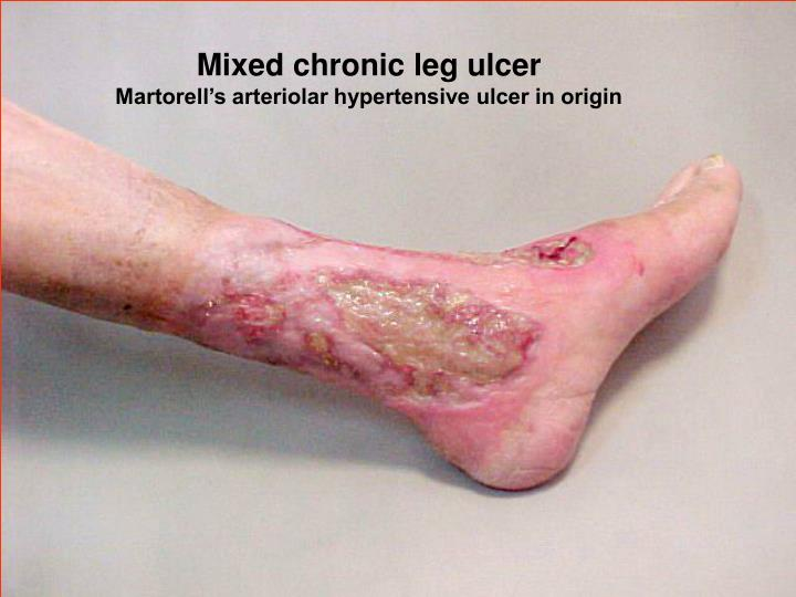 Mixed chronic leg ulcer