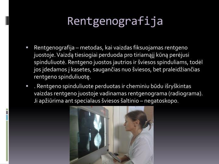 Rentgenografija