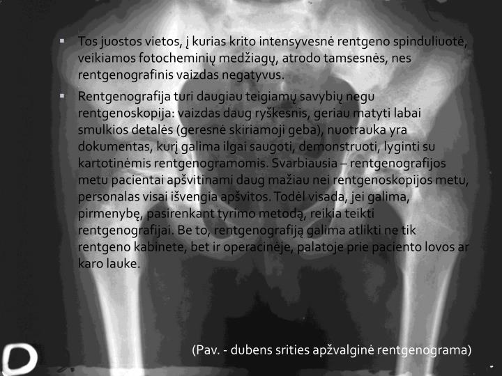 Tos juostos vietos, į kurias krito intensyvesnė rentgeno spinduliuotė, veikiamos fotocheminių medžiagų, atrodo tamsesnės, nes rentgenografinis vaizdas negatyvus.