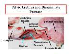 pelvic urethra and disseminate prostate