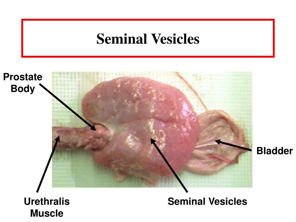 Seminal Vesicles