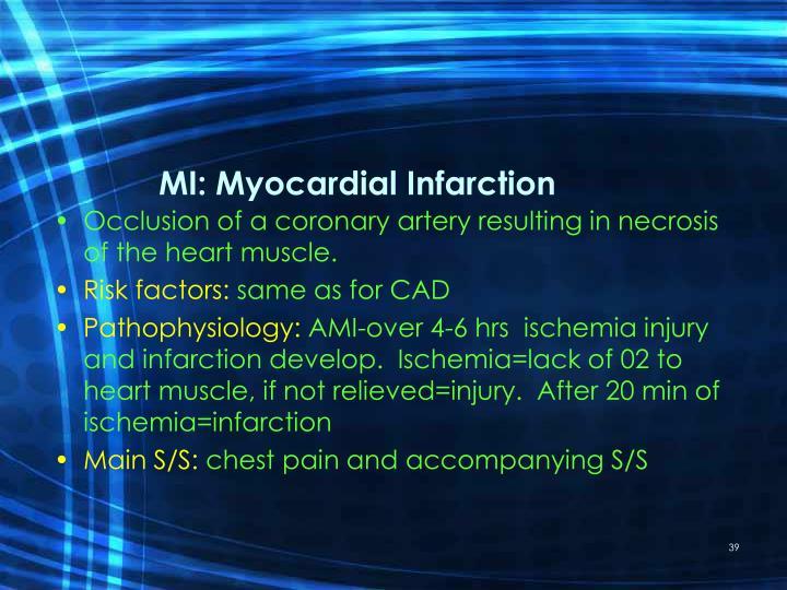 MI: Myocardial Infarction