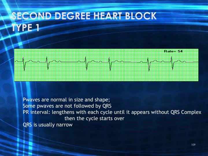 Second degree heart block type 1