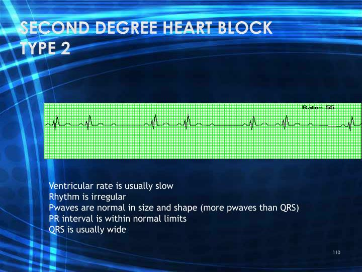 Second degree heart block type 2