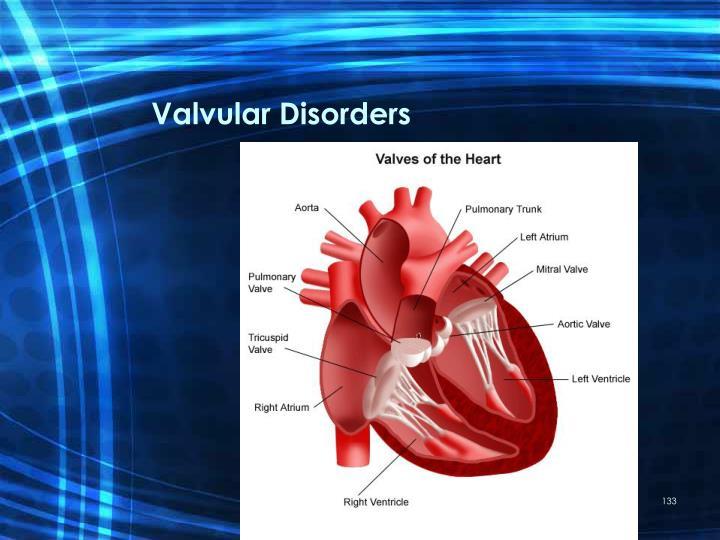 Valvular Disorders