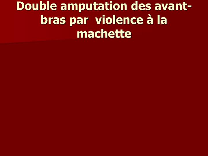 Double amputation des avant-bras par  violence à la machette