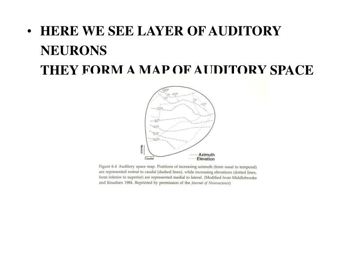 HERE WE SEE LAYER OF AUDITORY