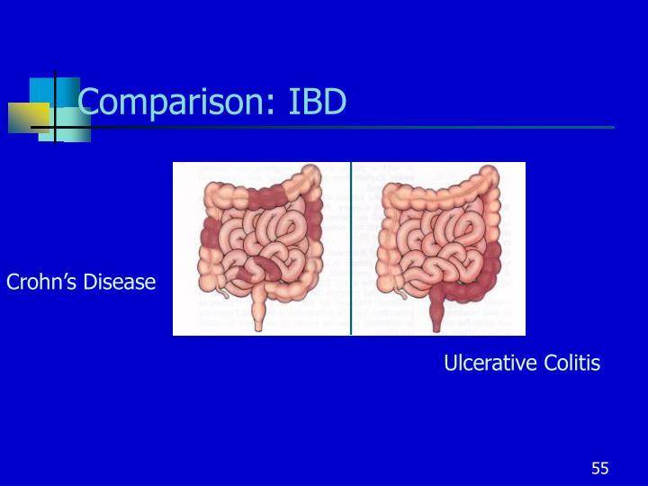 Comparison: IBD