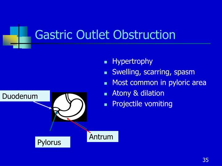 Gastric Outlet Obstruction