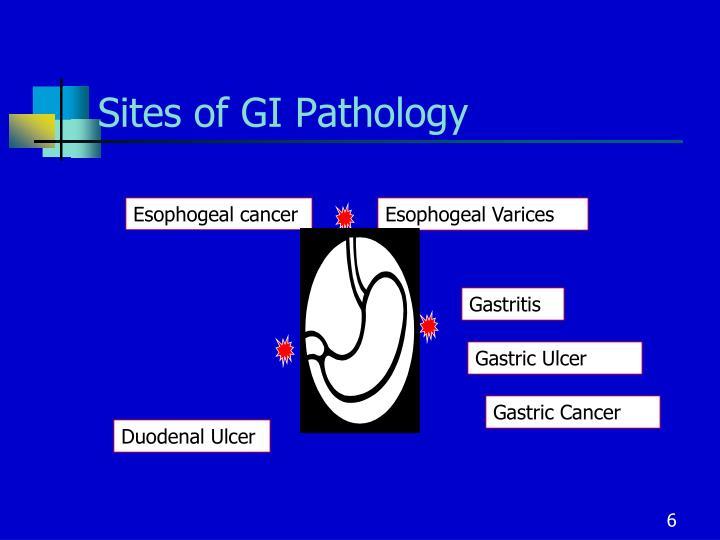 Sites of GI Pathology