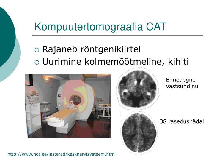 Kompuutertomograafia CAT