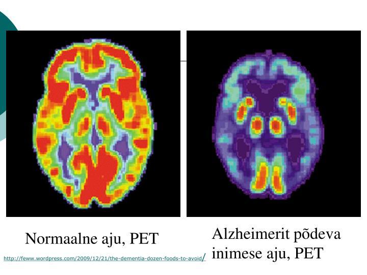 Alzheimerit põdeva inimese aju, PET