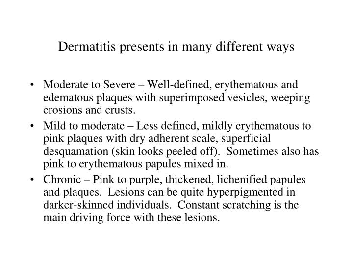 Dermatitis presents in many different ways