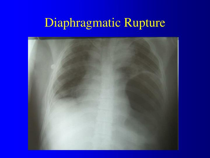 Diaphragmatic Rupture