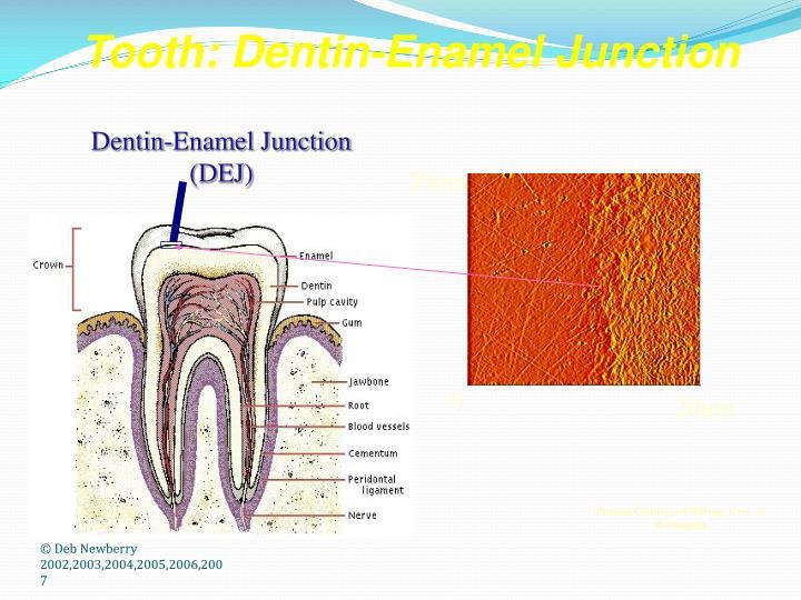 Dentin-Enamel Junction (DEJ)