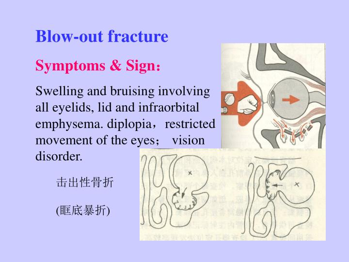 Blow-out fracture