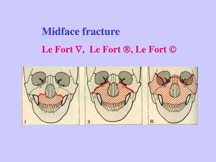 Midface fracture