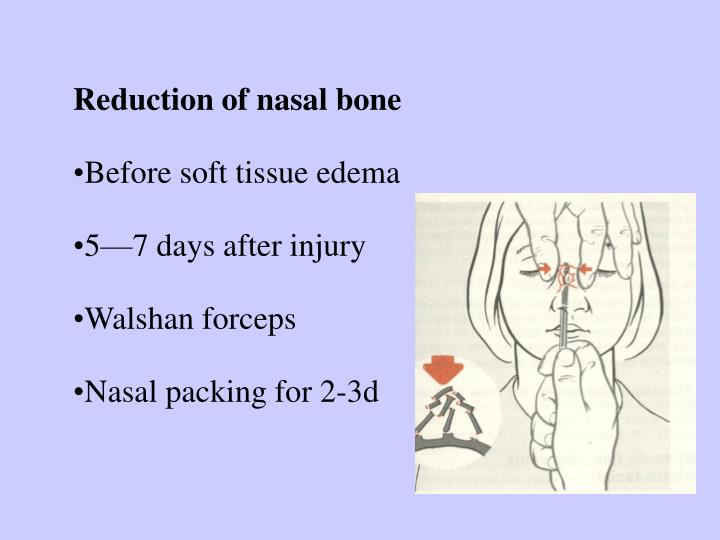 Reduction of nasal bone