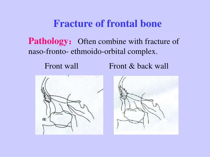 Fracture of frontal bone