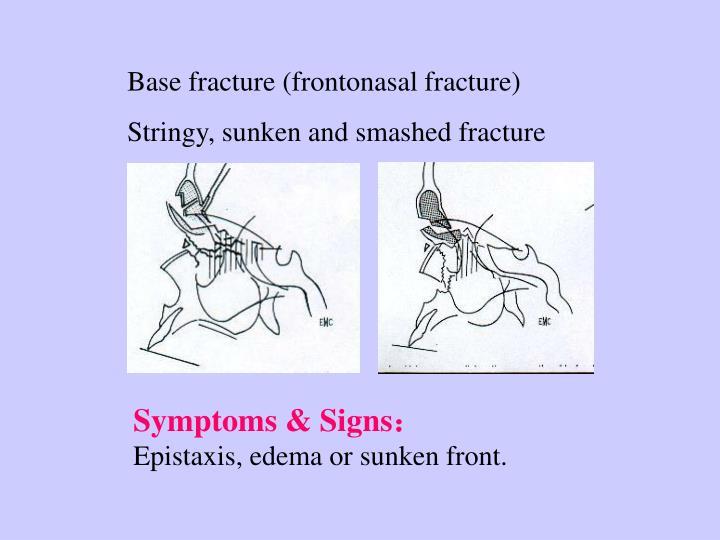 Base fracture (frontonasal fracture)