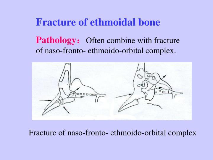 Fracture of ethmoidal bone